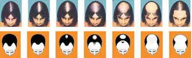 Grados de alopecia